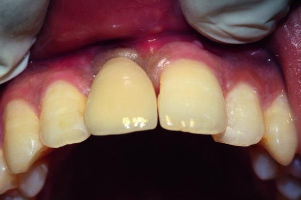 Локализованная аугментация с использованием титановой сетки и установкой имплантатов