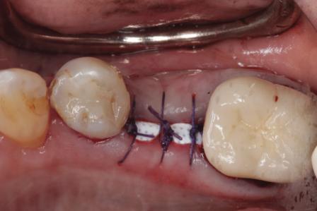 Использование d-PTFE мембран в ходе реконструкции постэкстракционных дефектов при подготовке к имплантации