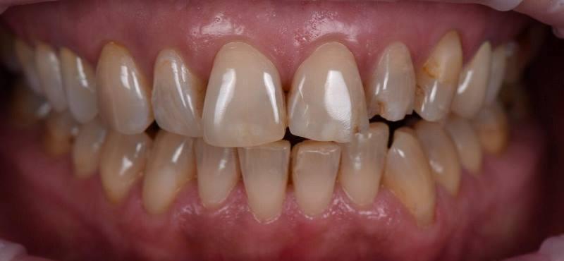 Реставрация верхних зубов керамическими винирами