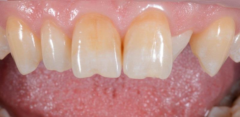 Одномоментная имплантация в область 22 зуба