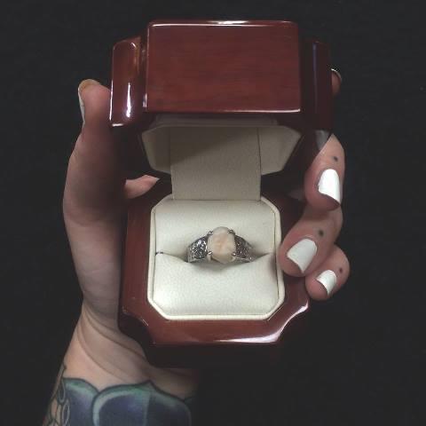 Девушка получила обручальное кольцо с зубом мудрости вместо бриллианта