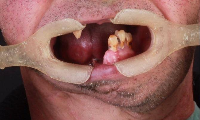 Одномоментная имплантация в малоберцовую кость