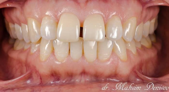 Пример работы на рефракторе при небольших тремах во фронтальном отделе зубов на верхней челюсти