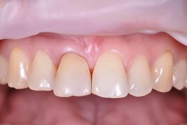 Восстановление фронтальных зубов после провального внутрикоронкового отбеливания