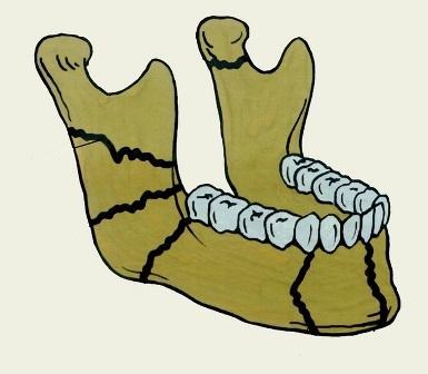 Анализ послеоперационных осложнений и эффективности 3D минипластин для фиксации отломков нижней челюсти