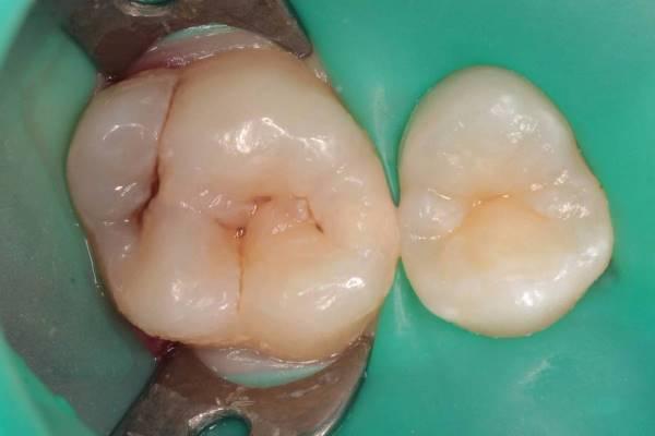 Использование прозрачного силикона Temp Silic в качестве ключа-штампа на боковых зубах при поражении по ll классу