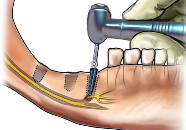 Поражение нерва во время имплантации: диагностика, лечение, профилактика