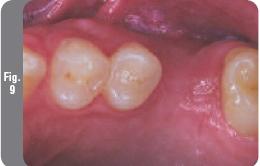 Открытый синус-лифтинг перед имплантацией зубов