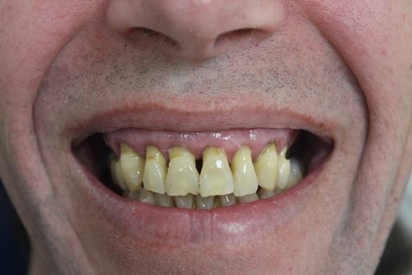 Реабилитация пациента по концепции all-on-4 с симультанной операцией на обеих челюстях