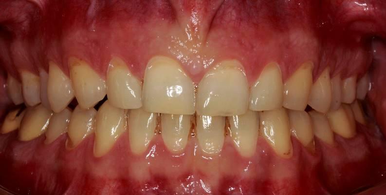 Морфофункциональное восстановление зубов композитными реставрациями с целью воссоздания физиологической окклюзии