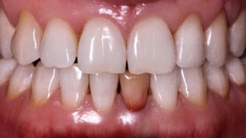 Устранение дисколорита 3.1 зуба