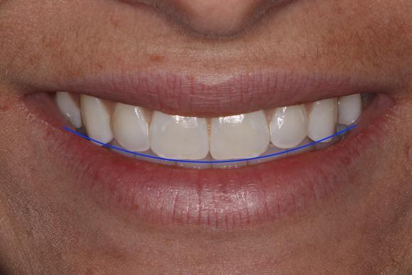 Определение позиции режущего края верхних зубов при помощи дентальной фотографии