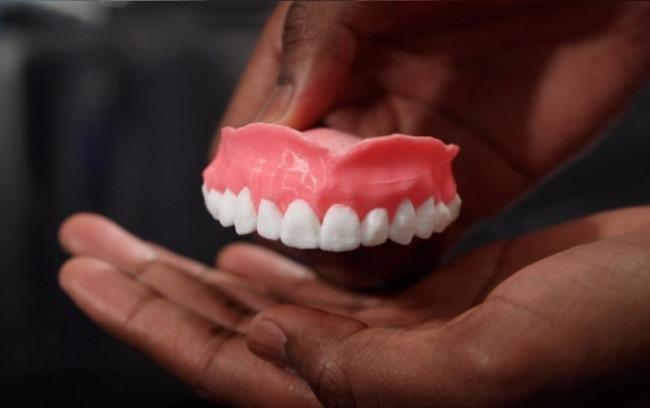Разработали съемные зубные протезы, пропитанные препаратом для профилактики грибковых инфекций в ротовой полости