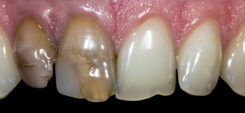 Способ маскировки интенсивного дисколорита передних зубов с помощью прямой композитной реставрации