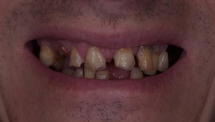 Реабилитация пациента методикой all-on-6 одномоментно с удалением зубов на верхней и нижней челюсти