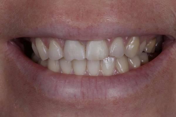Прямая реставрация передних четырёх резцов без изменения основного цвета зуба (комбинации материалов с различной опаковостью)