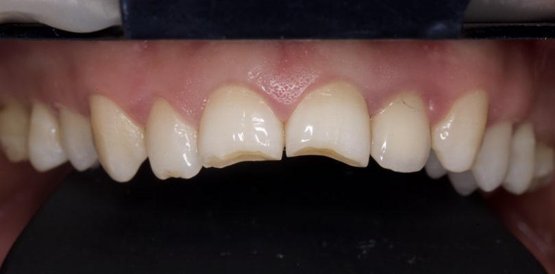 Прямая реставрация зубов 1.1 и 2.1