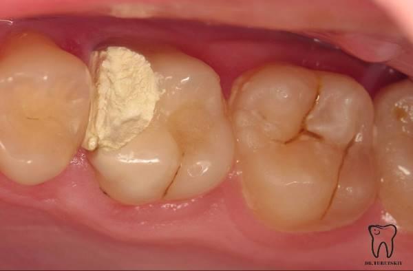Восстановление 16 зуба с помощью композитной вкладки