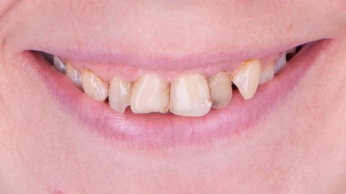 Восстановление эстетики улыбки с помощью керамических виниров и коронок