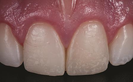 Новая классификация керамических материалов в стоматологии: как сделать правильный выбор?