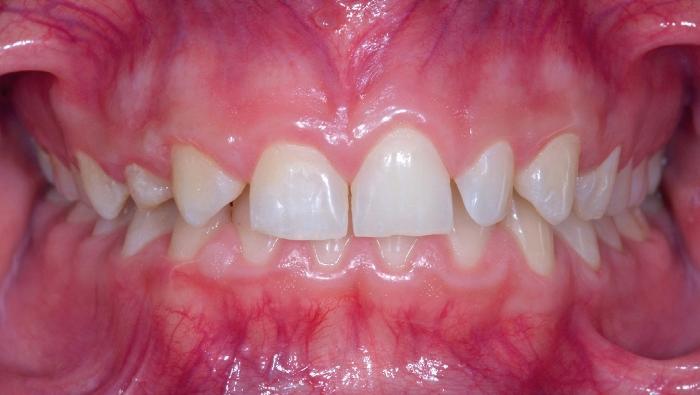 Комплексный подход СRANIO: ортодонтия и имплантация