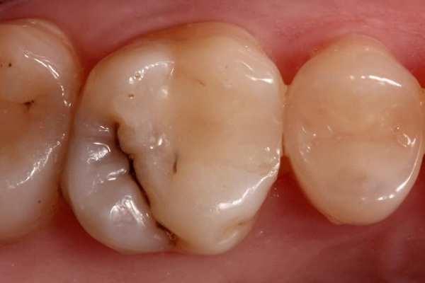 Лечение кариеса 16 зуба