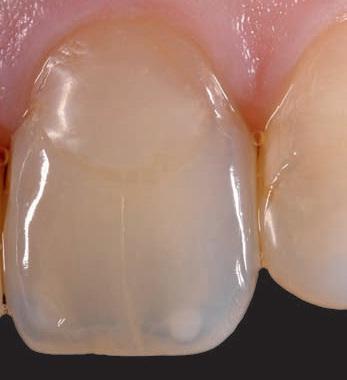Как лечит прозрачные зубы