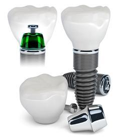 Ученые не выявили разницы между различными зубными имплантатами