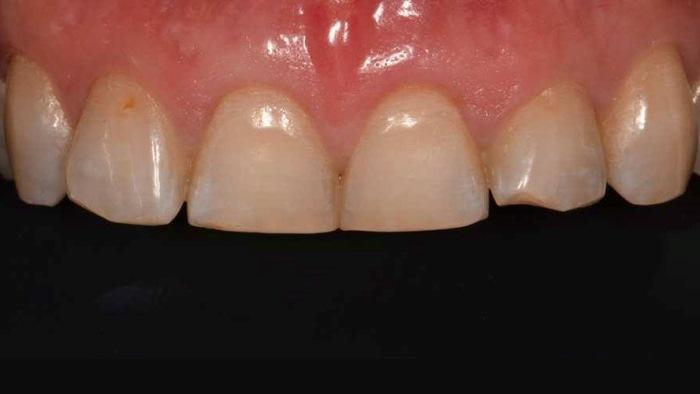 Эстетическая реабилитация фронтальной группы зубов методом прямой композитной реставрации материалом Estelite Sigma