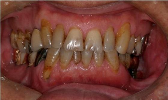 Клинический случай радионекроза челюсти и периимплантита после лучевой терапии