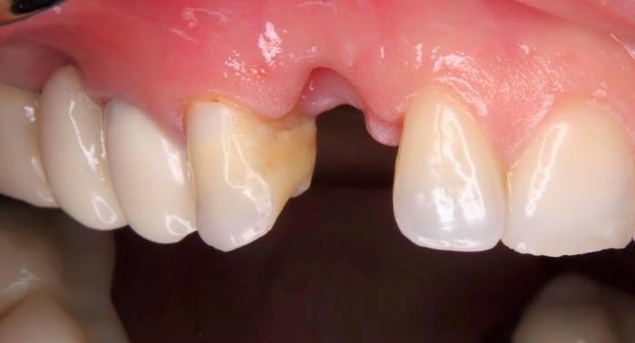 Немедленное зубоальвеолярное восстановление (IDR) в области клыка верхней челюсти
