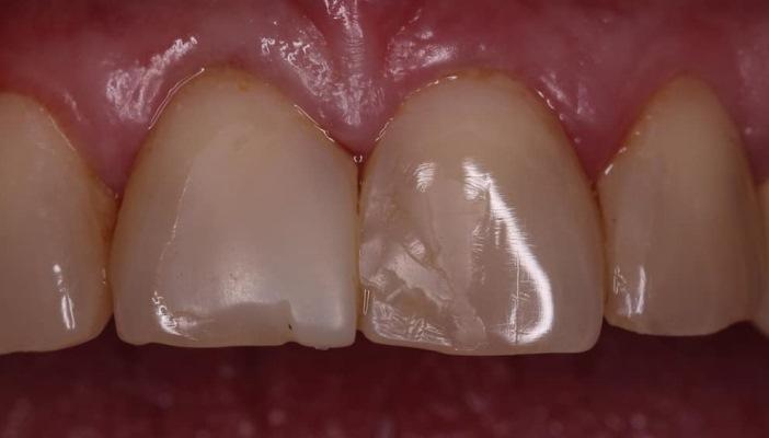 Замена несостоятельных реставраций на зубах 1.1 и 2.1
