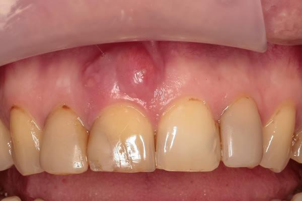 Немедленная имплантация в область 1.1 зуба