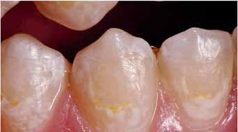 Лечение повреждений эмали после снятия ортодонтической аппаратуры