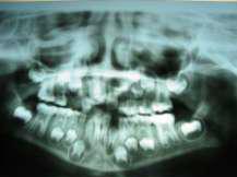 Ортопантомограмма, показывающая рентгеноконтрастное пятно и смещенные зубы.