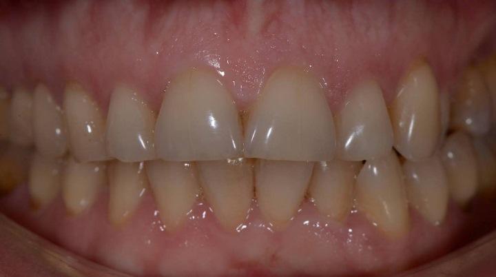 Возвращаем молодость улыбке: реконструкция верхних и нижних передних зубов с коррекцией цвета, формы, положения и вертикального размера