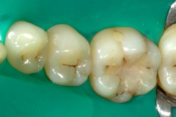 Лечение кариеса 3.5, 3.6 зубов