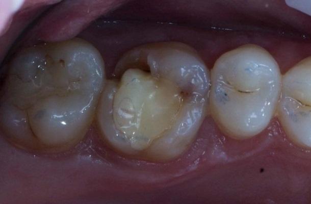 Замена пломбы и восстановление скола стенки зуба 2.6
