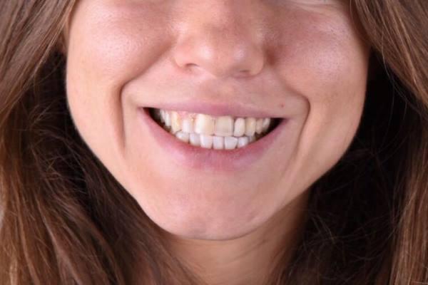 Непрямая керамическая реставрация передней группы зубов с использованием прямого мокапа