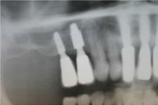 имплантационная система ANKYLOS