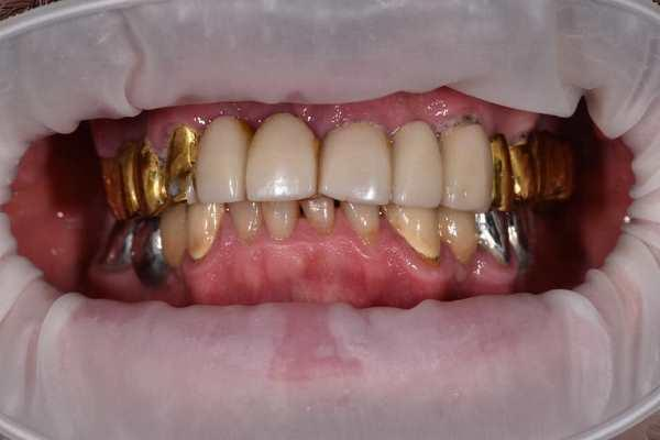 All-on-6 с немедленной нагрузкой и зубами в 1 день
