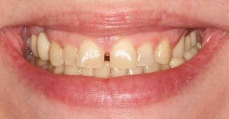 Комплексная реабилитация полости рта с применением имплантатов OneQ-SL от Dentis