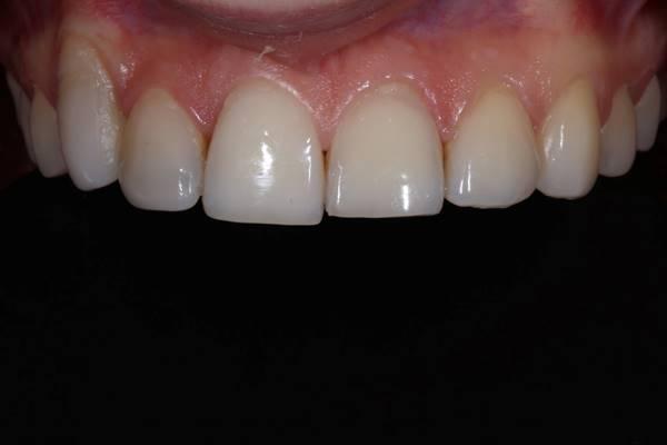 Реставрация фронтальных зубов у ортодонтического пациента с непрорезавшимся клыком