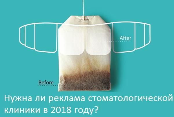 Нужна ли реклама стоматологической клиники в 2018 году?