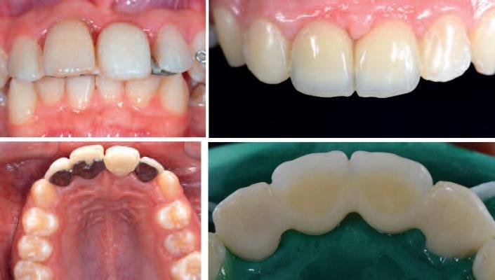 Эстетическая реабилитация с сохранением тканей во фронтальной области