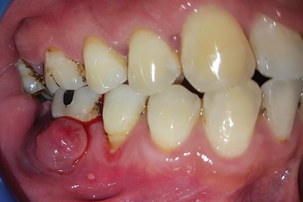 Реабилитация эндодонтически и пародонтально скомпрометированного моляра
