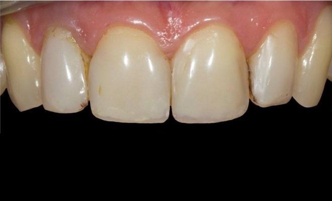Эстетическая реставрация передних зубов верхней челюсти