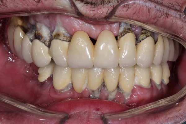 Первый этап тотальной реабилитации с опорой на имплантаты (верхняя челюсть)