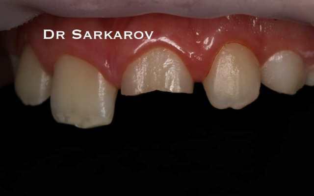 Перелом коронки зуба с повреждением пульпы 21