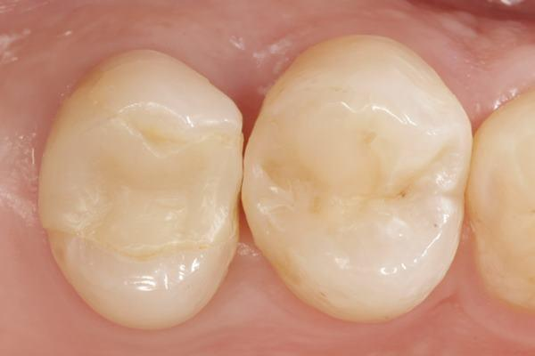 Прямая композитная реставрация зубов 2.4 и 2.5